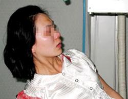 Cô giáo Sương đang cấp cứu tại bệnh viện. Ảnh: Sơn Ninh