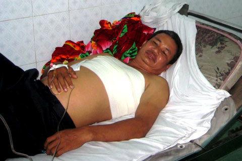 Anh Nam đang được điều trị tại bệnh viện thị xã Thuận An. Ảnh: Trung Tín.