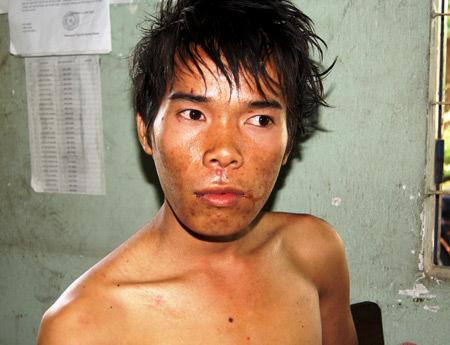 Quân bị bắt tại hiện trường trong người vẫn còn nồng nặc mùi rượu. Ảnh: Nguyệt Triều.