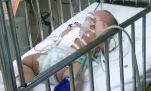 Bé gái 4 tháng tuổi bị đâm vào bụng