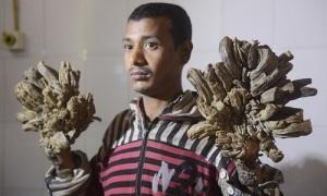 'Người cây' Bangladesh sắp được phẫu thuật