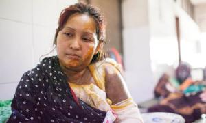 Cãi nhau vặt, chồng tạt axit vào mặt vợ ở Bangladesh