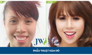 Chiều nay tư vấn trực tuyến niềng răng và phẫu thuật hàm hô, móm