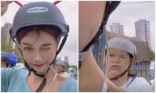 Cô gái bị bóc mẽ khi khoe ảnh chụp mặt V-line