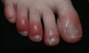 Tại sao khi trời lạnh tay chân bị cước?